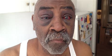 Police Allegedly Beat Pearl Pearson For Disobeying Orders